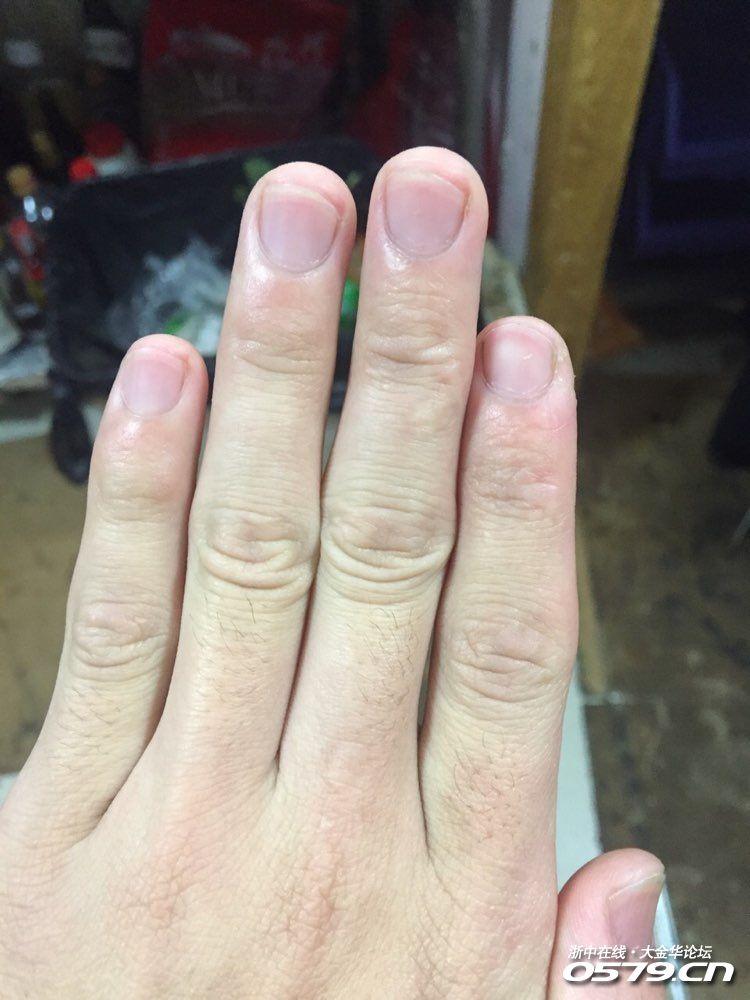 手指甲凹陷,没有小太阳